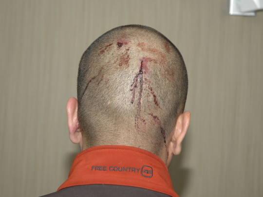 George_Zimmerman_back_of_head
